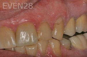 Brent-Nichols-Gum-Surgery-after-1