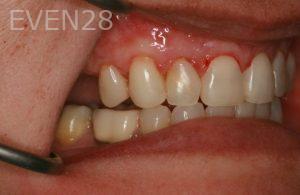 Brent-Nichols-Gum-Surgery-after-2