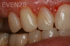 Brent-Nichols-Gum-Surgery-after-2b