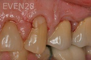Brent-Nichols-Gum-Surgery-before-1