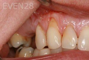 Brent-Nichols-Gum-Surgery-before-2