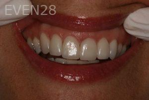 Brent-Nichols-Porcelain-Veneers-after-2