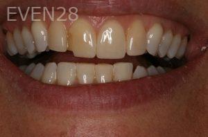 Brent-Nichols-Porcelain-Veneers-before-2