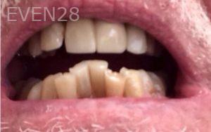 Brent-Nichols-Porcelain-Veneers-before-3