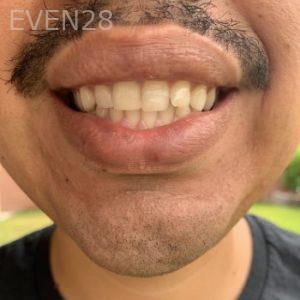 Brian-Ley-Dental-Bonding-after-1