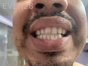 Brian-Ley-Dental-Bonding-before-1