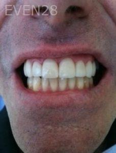 Carmella-Mashian-Dental-Crowns-after-1