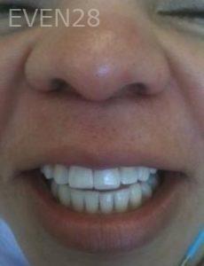 Carmella-Mashian-Dental-Crowns-after-2
