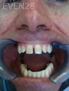 Carmella-Mashian-Dental-Crowns-before-1