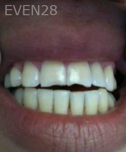 Carmella-Mashian-Dental-Crowns-before-2