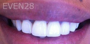 Carmella-Mashian-Porcelain-Veneers-after-3