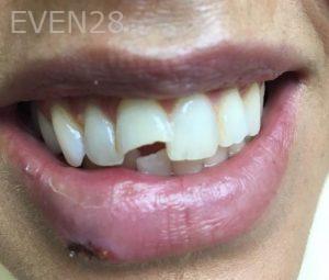 Carmella-Mashian-Porcelain-Veneers-before-2