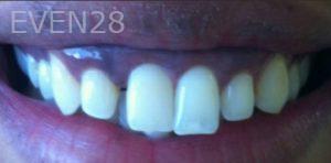 Carmella-Mashian-Porcelain-Veneers-before-3