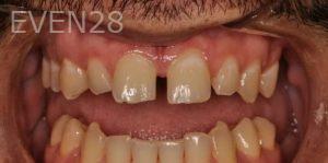 Chirag-Patel-Full-Mouth-Rehabilitation-before-1
