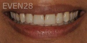 Chirag-Patel-Porcelain-Veneers-before-14