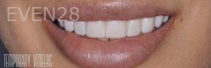 Chirag-Patel-Porcelain-Veneers-before-3b