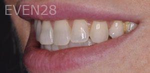 Chirag-Patel-Porcelain-Veneers-before-4b