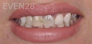 Chirag-Patel-Porcelain-Veneers-before-5