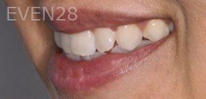 Chirag-Patel-Porcelain-Veneers-before-5b