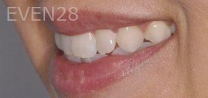 Chirag-Patel-Porcelain-Veneers-before-9