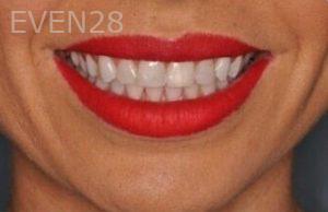 Chirag-Patel-Smile-Makeover-after-3