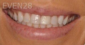Chirag-Patel-Smile-Makeover-before-3