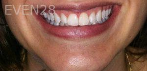Chirag-Patel-Teeth-Whitening-after-1