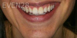 Chirag-Patel-Teeth-Whitening-before-1
