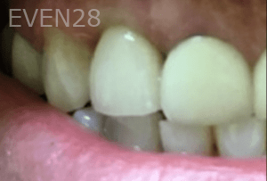 Christian-Song-Woo-Jung-Dental-Implants-after-2