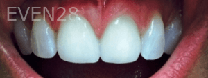 Christian-Song-Woo-Jung-Dental-Crowns-after-4