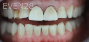 Christian-Song-Woo-Jung-Dental-Crowns-before-3