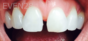 Christian-Song-Woo-Jung-Dental-Crowns-before-4