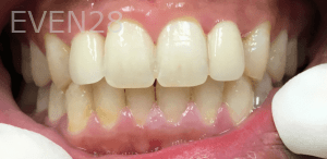 Christian-Song-Woo-Jung-Implant-Dental-Crowns-after-1