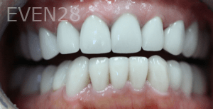 Christian-Song-Woo-Jung-Implant-Dental-Crowns-after-2
