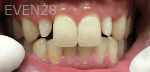 Christian-Song-Woo-Jung-Implant-Dental-Crowns-before-1