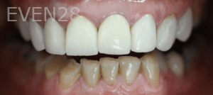 Christian-Song-Woo-Jung-Implant-Dental-Crowns-before-2