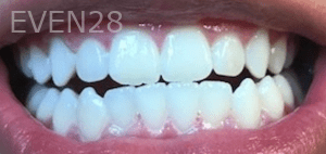 Christian-Song-Woo-Jung-Implant-Teeth-Whitening-after-1