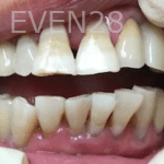 Christian-Song-Woo-Jung-Implant-Teeth-Whitening-after-2
