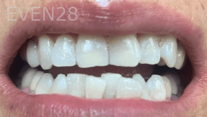 Christian-Song-Woo-Jung-Implant-Teeth-Whitening-after-3