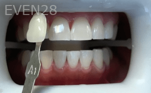 Christian-Song-Woo-Jung-Implant-Teeth-Whitening-after-4