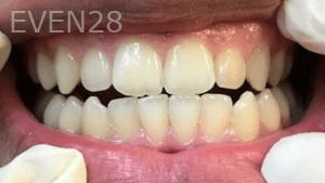 Christian-Song-Woo-Jung-Implant-Teeth-Whitening-before-1