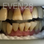 Christian-Song-Woo-Jung-Implant-Teeth-Whitening-before-2