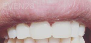 Dan-Benyamini-Dental-Bonding-after-1