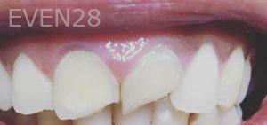 Dan-Benyamini-Dental-Bonding-before-1