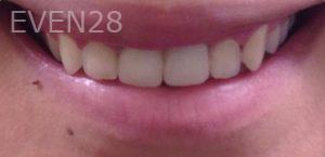 Dan-Benyamini-Dental-Crowns-after-2