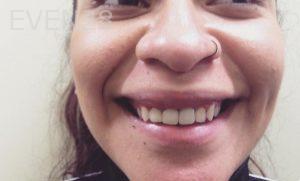 Dan-Benyamini-Dental-Crowns-after-2b