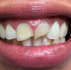 Dan-Benyamini-Dental-Crowns-before-1