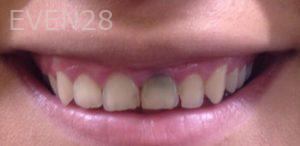 Dan-Benyamini-Dental-Crowns-before-2