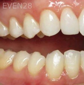 David-Eshom-Bioclear-Veneers-after-3