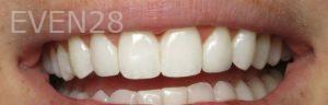 David-Eshom-Dental-Bonding-after-1